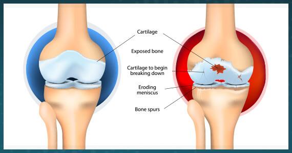 edmonton-bone-joint-msk-osteoarthritis