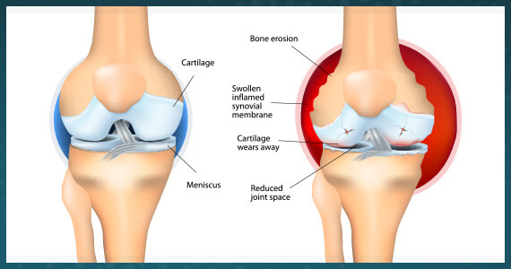 edmonton-bone-joint-msk-rheumatoid-arthritis